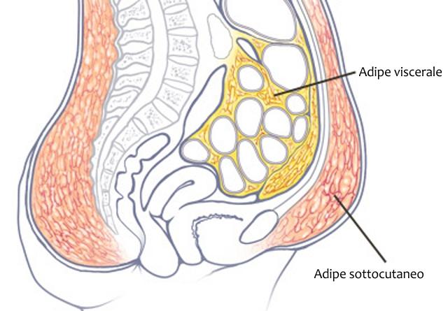 Chirurgia estetica addome adiposo